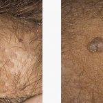 زگیل جنسی یا ویروس پاپیلومای انسانی HPV
