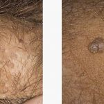 زگیل جنسی با عامل ویروس پاپیلوم انسانی یا HPV :